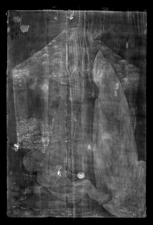 X-ray (© Titmus)